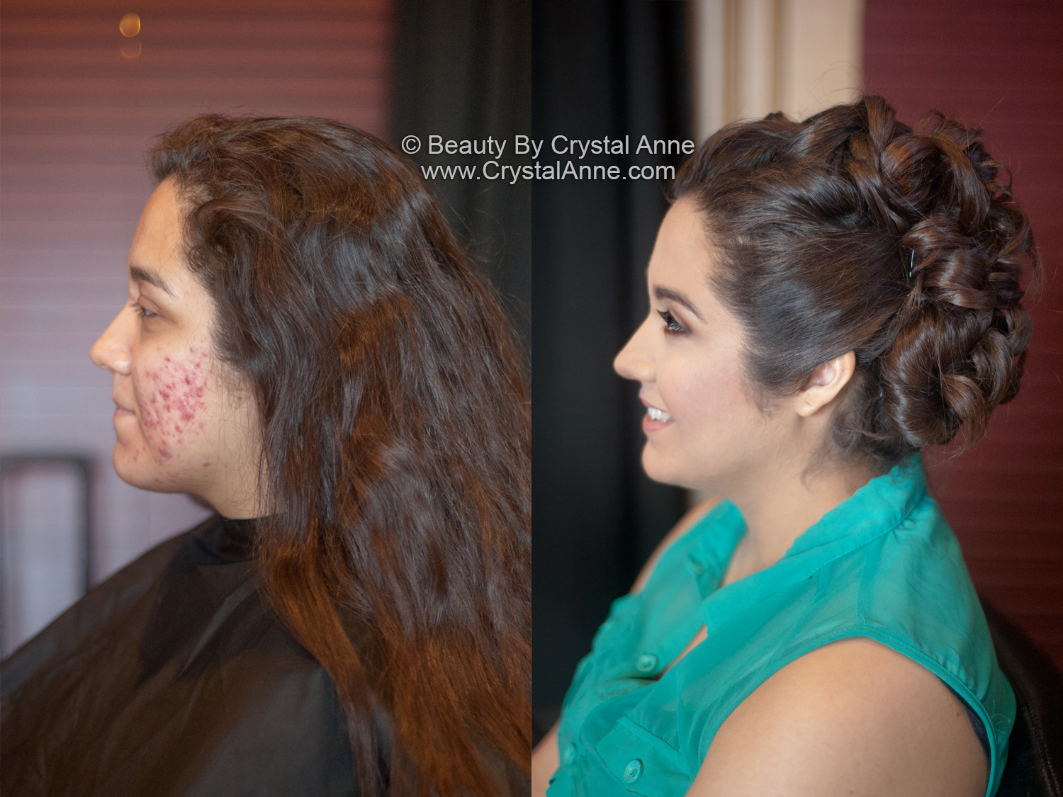 Airbrush Makeup For Acne