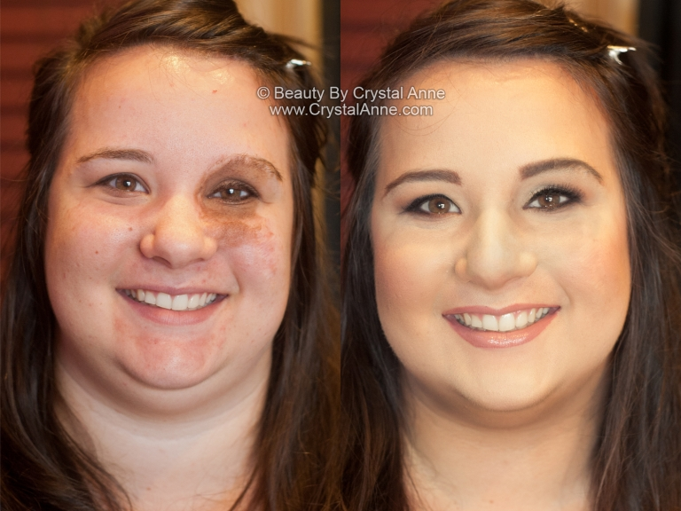 How To Cover Birthmarks With Makeup